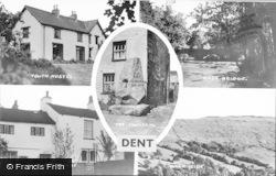 Composite c.1950, Dent
